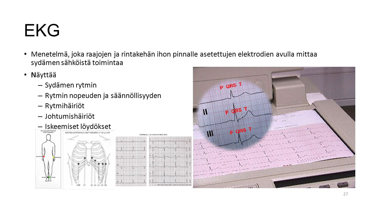 EKG Menetelmä, joka raajojen ja rintakehän ihon pinnalle asetettujen elektrodien avulla mittaa sydämen sähköistä toimintaa.