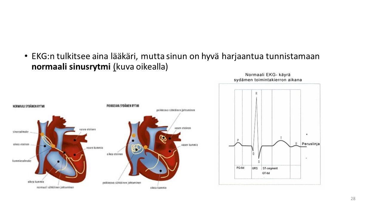 EKG:n tulkitsee aina lääkäri, mutta sinun on hyvä harjaantua tunnistamaan normaali sinusrytmi (kuva oikealla)