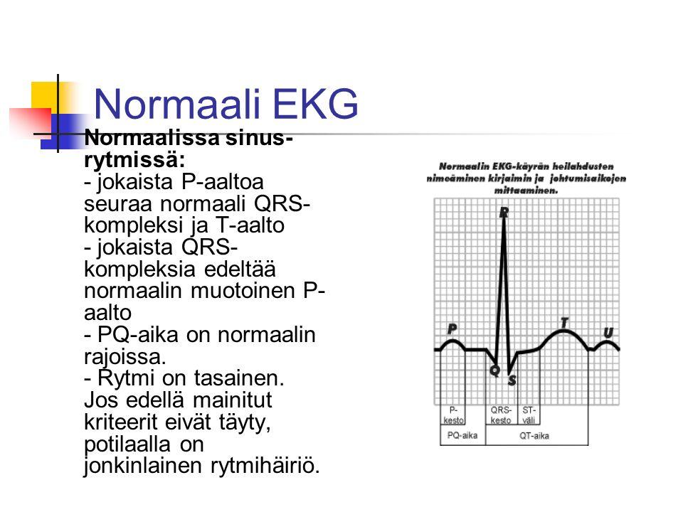 Normaali EKG