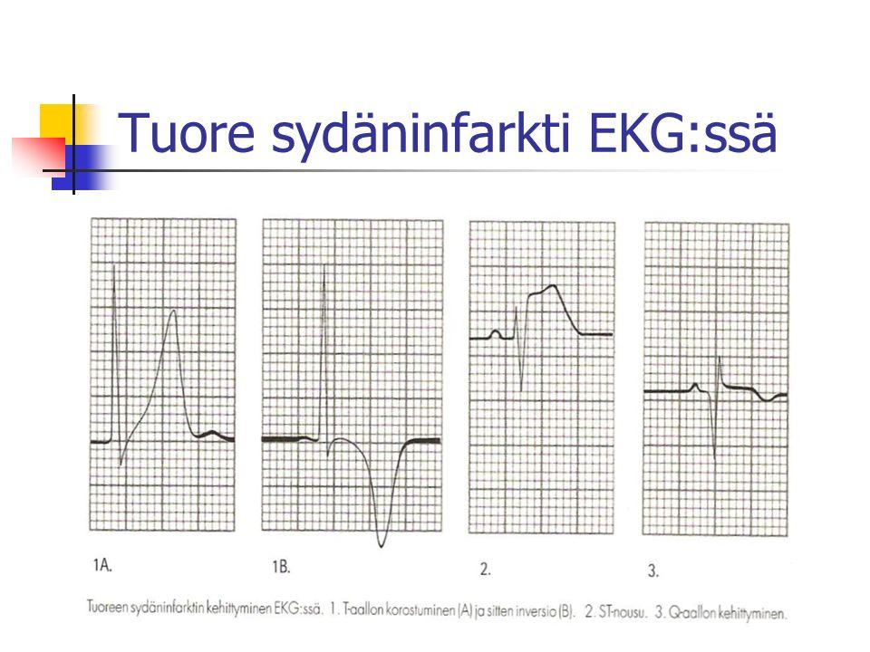 Tuore sydäninfarkti EKG:ssä