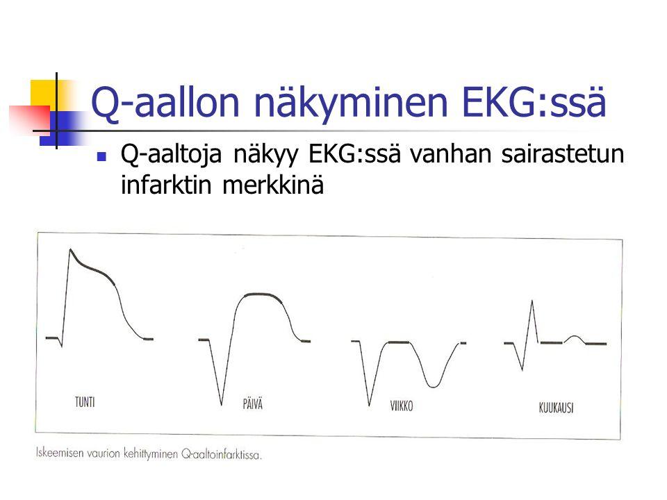 Q-aallon näkyminen EKG:ssä