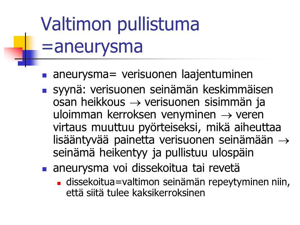 Valtimon pullistuma =aneurysma