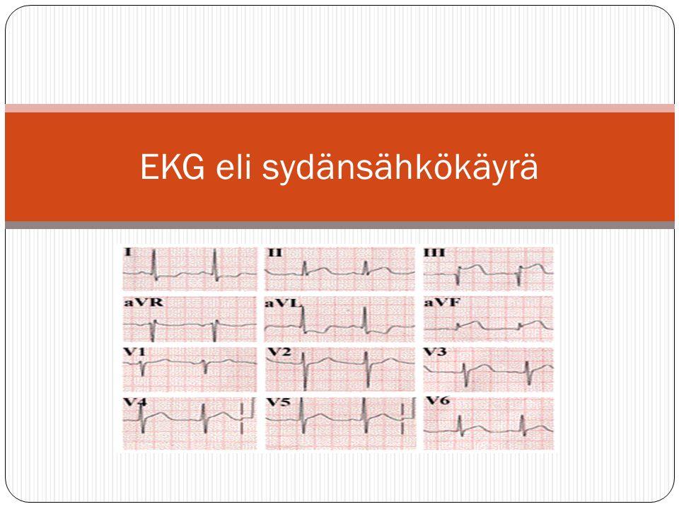 EKG eli sydänsähkökäyrä
