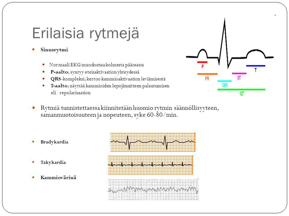 Erilaisia rytmejä Sinusrytmi. Normaali EKG muodostuu kolmesta pääosasta. P-aalto; syntyy eteisaktivaation yhteydessä.