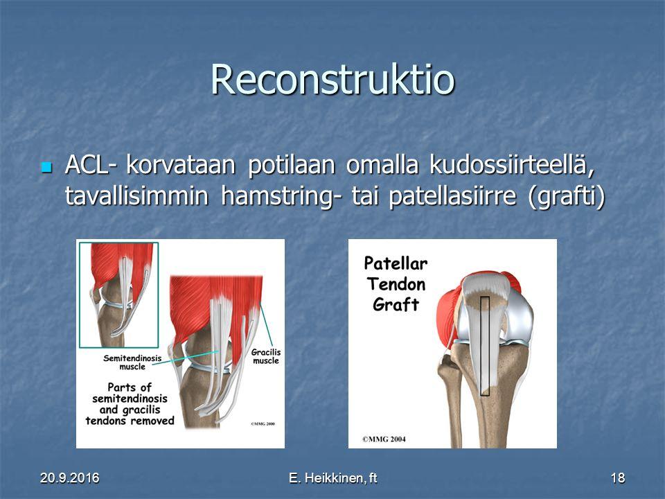 Reconstruktio ACL- korvataan potilaan omalla kudossiirteellä, tavallisimmin hamstring- tai patellasiirre (grafti)