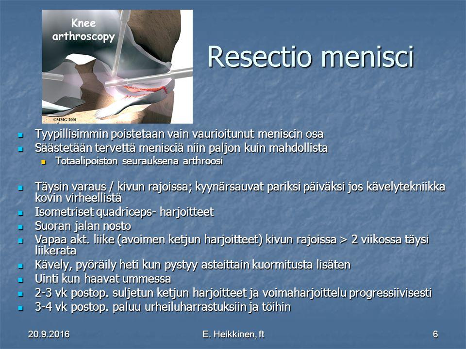 Resectio menisci Tyypillisimmin poistetaan vain vaurioitunut meniscin osa. Säästetään tervettä menisciä niin paljon kuin mahdollista.