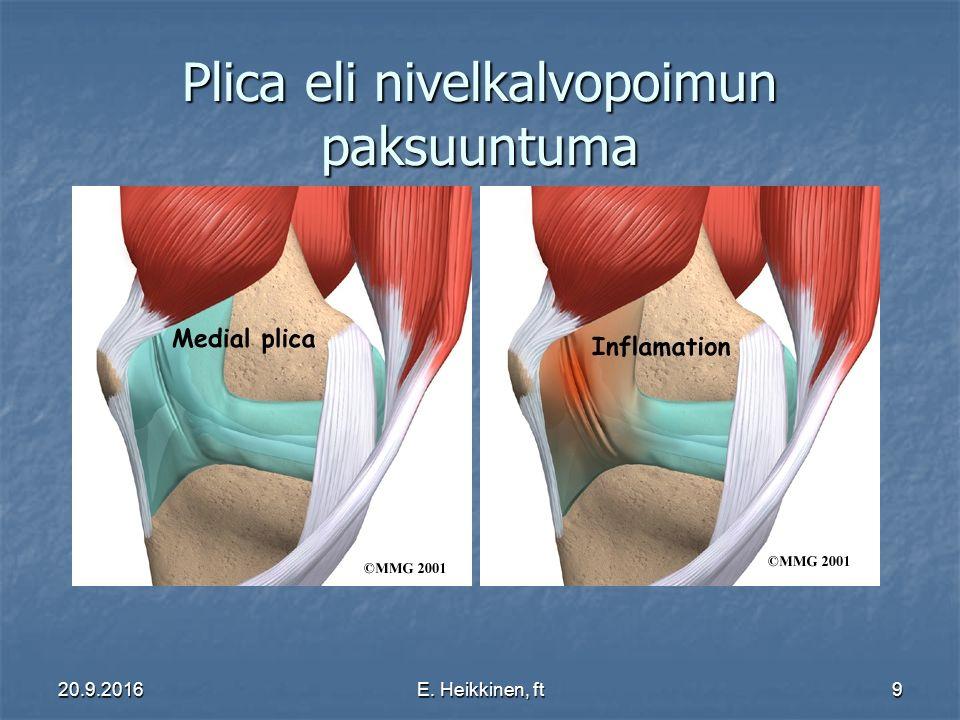 Plica eli nivelkalvopoimun paksuuntuma