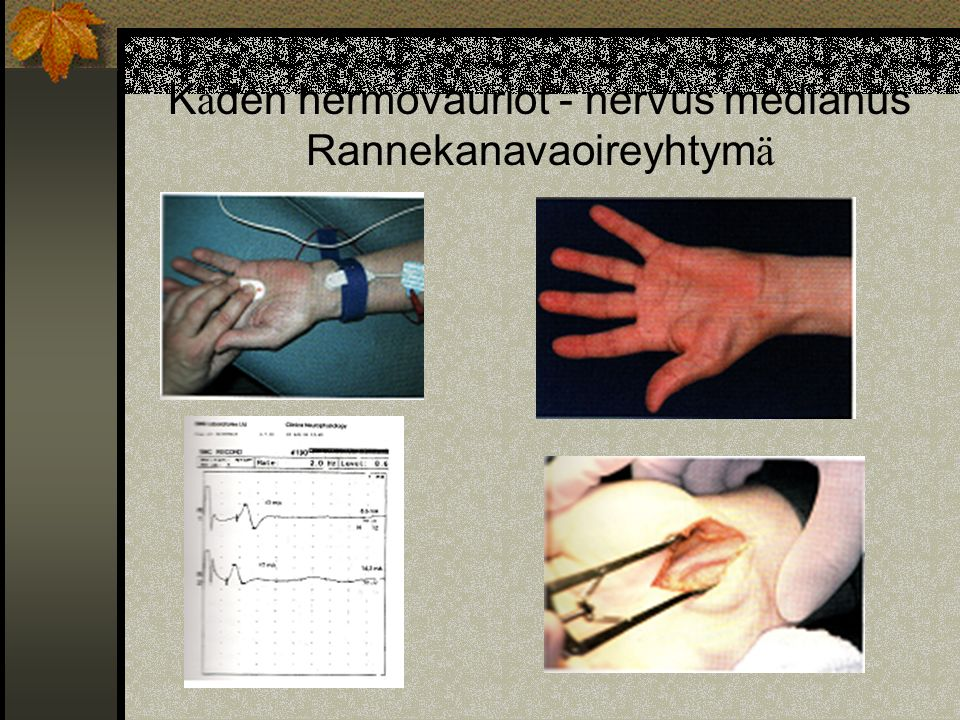 Käden hermovauriot - nervus medianus Rannekanavaoireyhtymä