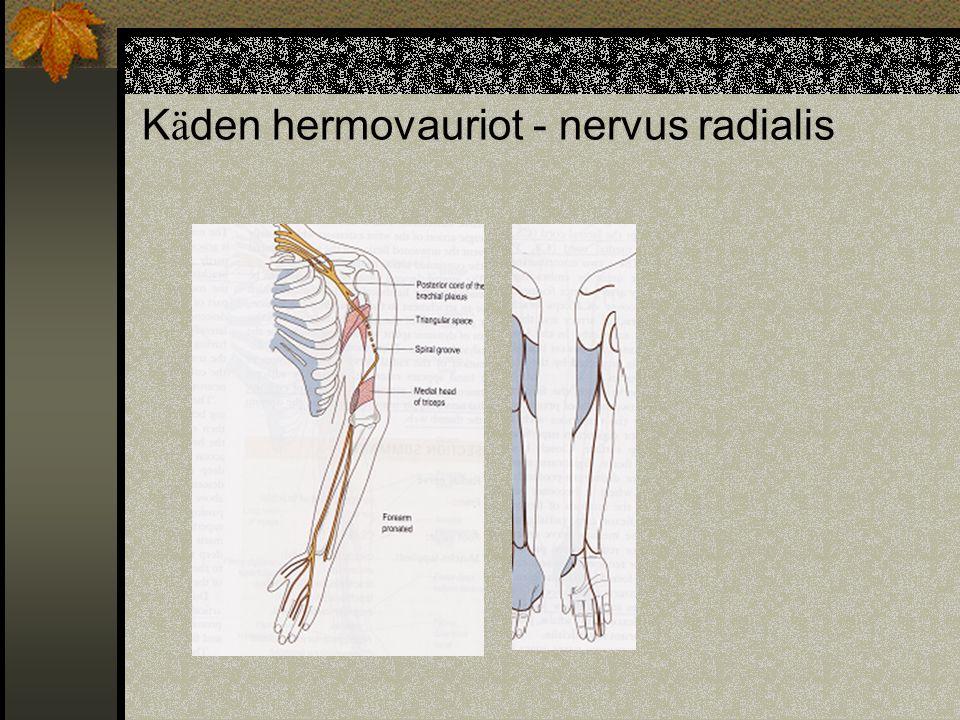 Käden hermovauriot - nervus radialis