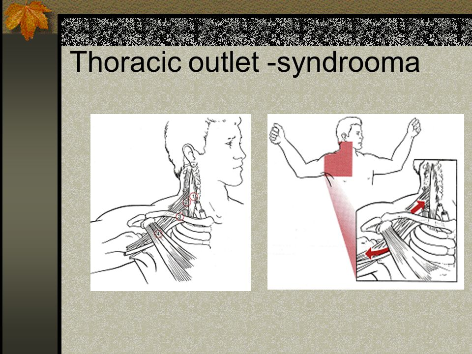 Thoracic outlet -syndrooma
