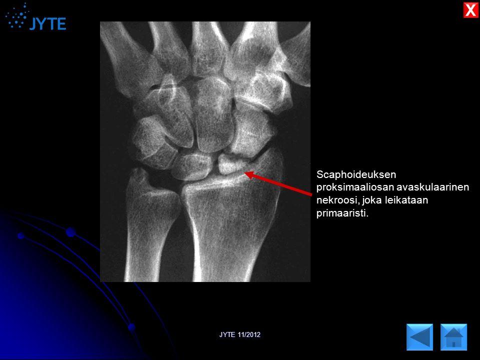 X Scaphoideuksen proksimaaliosan avaskulaarinen nekroosi, joka leikataan primaaristi. JYTE 11/2012