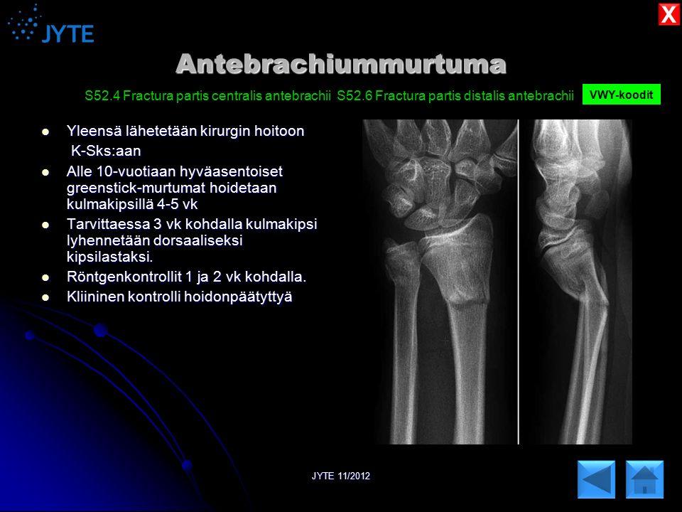 Antebrachiummurtuma X Yleensä lähetetään kirurgin hoitoon K-Sks:aan