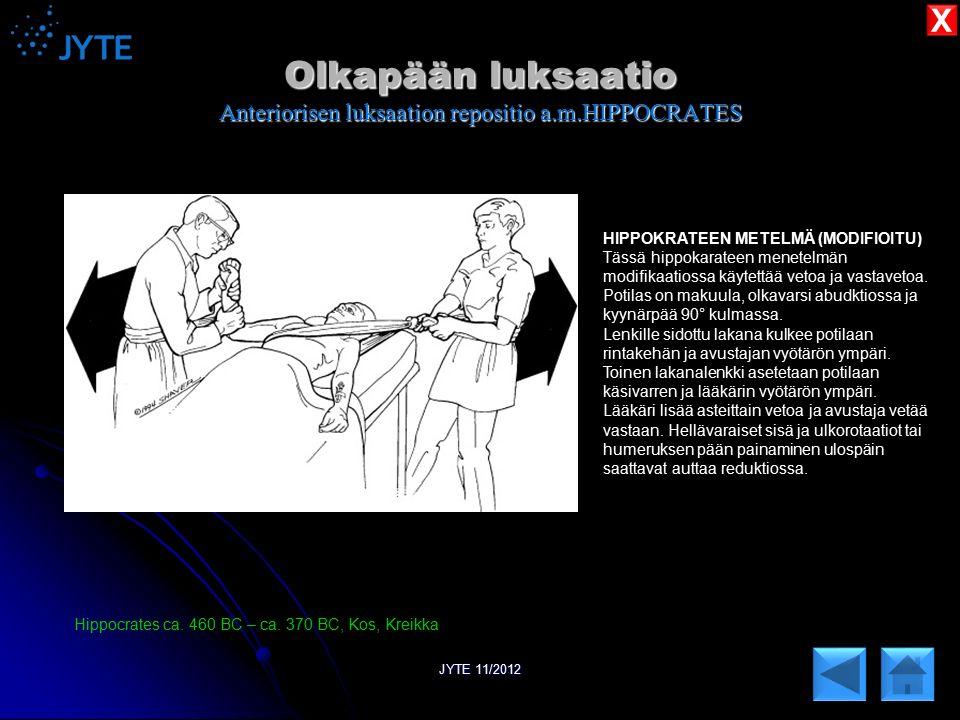 Olkapään luksaatio Anteriorisen luksaation repositio a.m.HIPPOCRATES