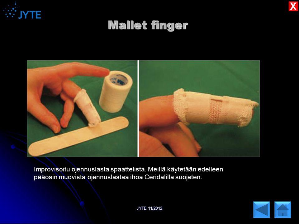 X Mallet finger. Improvisoitu ojennuslasta spaattelista. Meillä käytetään edelleen. pääosin muovista ojennuslastaa ihoa Ceridalilla suojaten.
