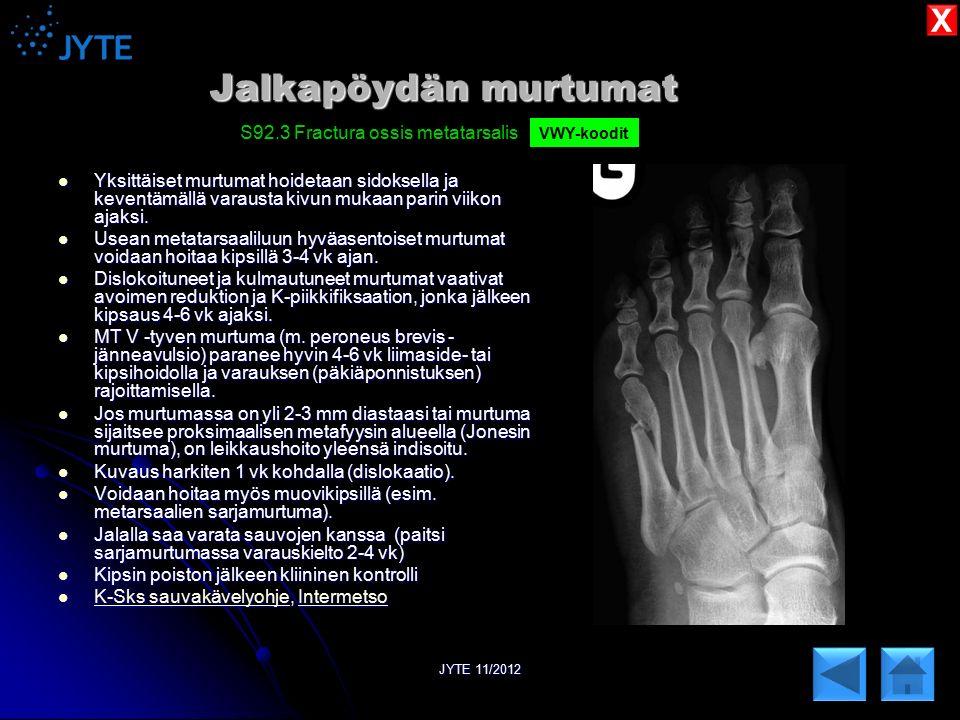 Jalkapöydän murtumat X S92.3 Fractura ossis metatarsalis
