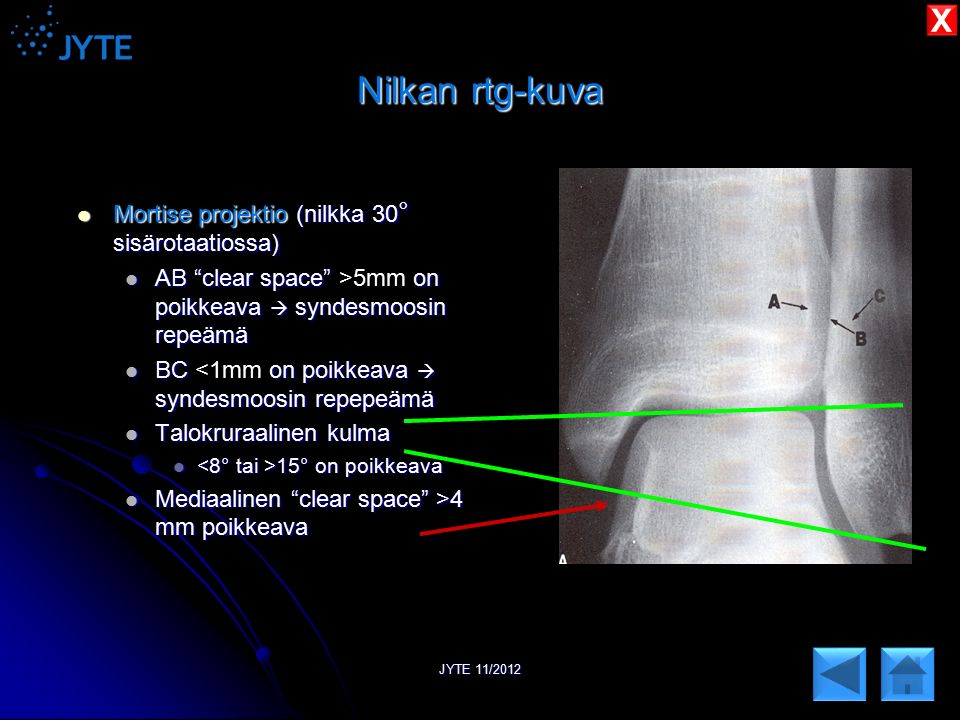 Nilkan rtg-kuva X Mortise projektio (nilkka 30° sisärotaatiossa)