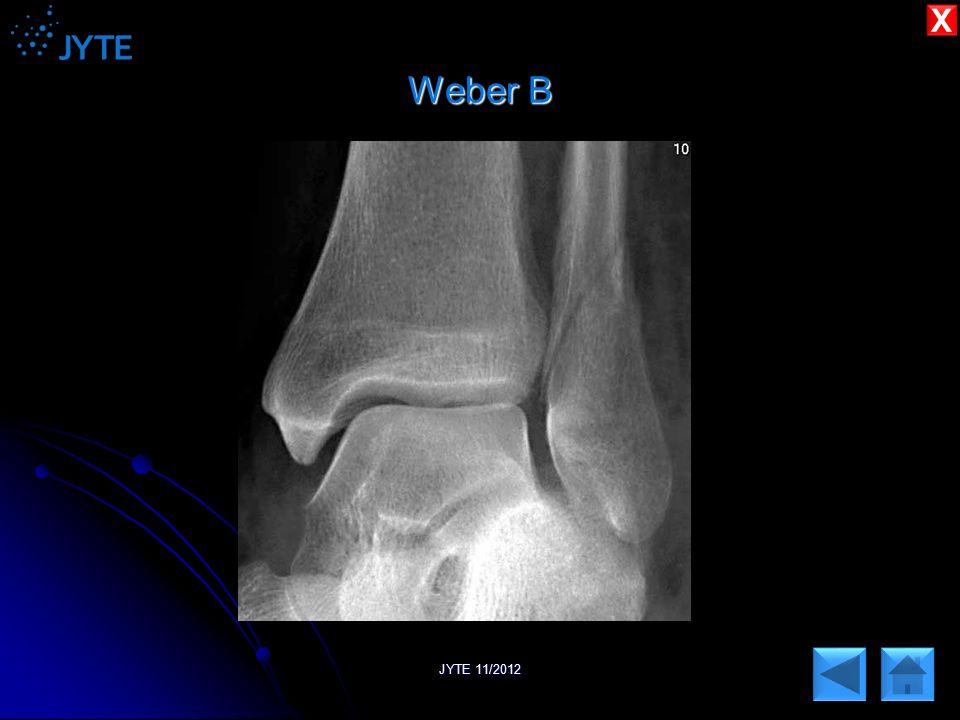X Weber B JYTE 11/2012