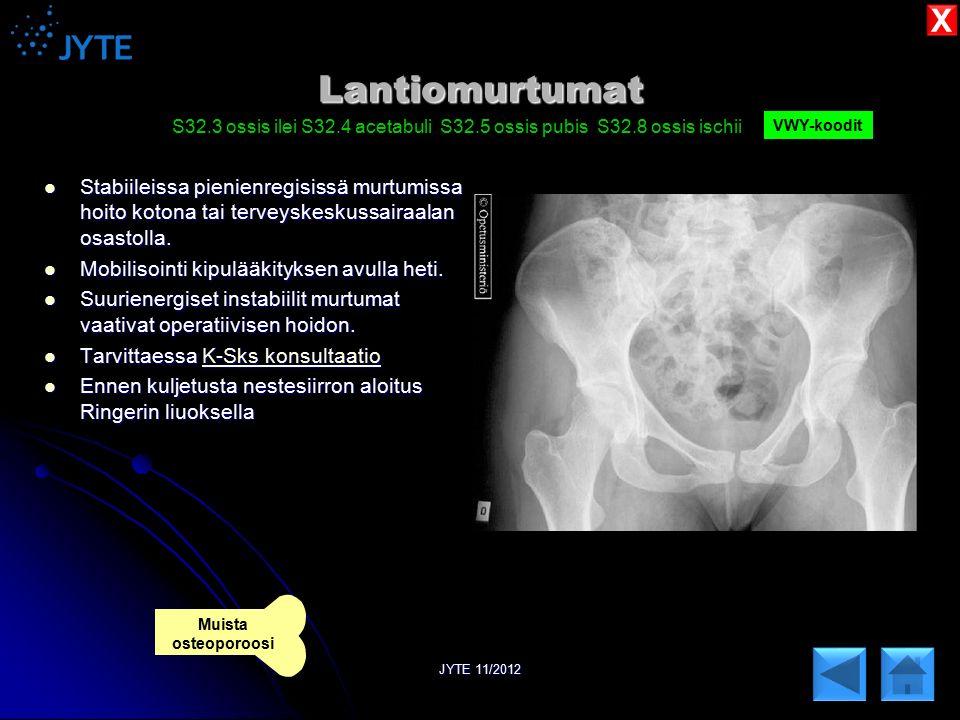 X Lantiomurtumat. S32.3 ossis ilei S32.4 acetabuli S32.5 ossis pubis S32.8 ossis ischii. VWY-koodit.