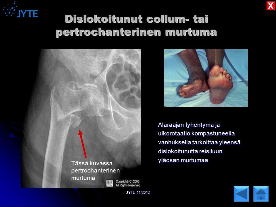 Dislokoitunut collum- tai pertrochanterinen murtuma