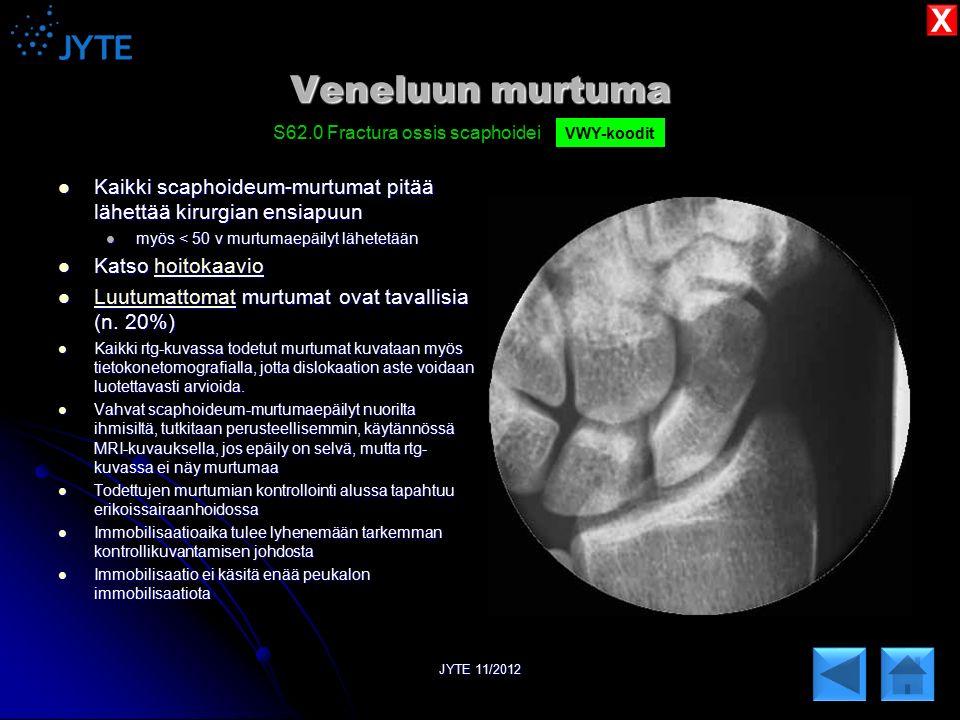 X Veneluun murtuma. S62.0 Fractura ossis scaphoidei. VWY-koodit. Kaikki scaphoideum-murtumat pitää lähettää kirurgian ensiapuun.