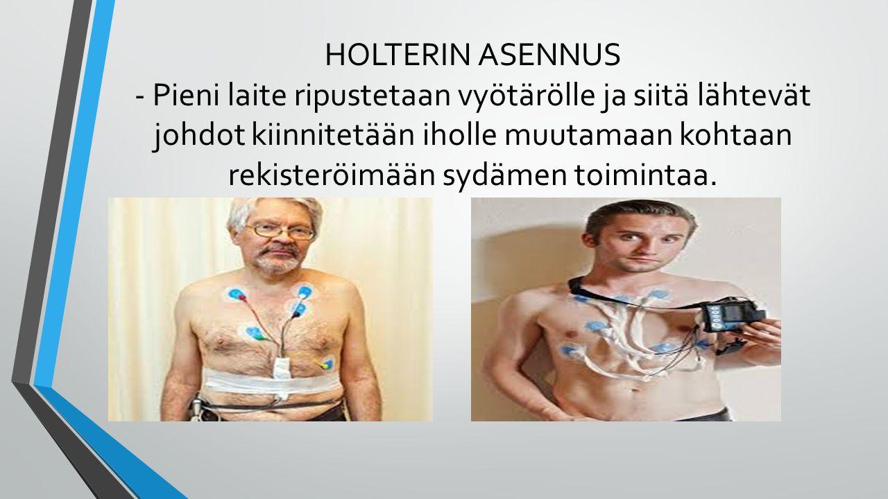 HOLTERIN ASENNUS - Pieni laite ripustetaan vyötärölle ja siitä lähtevät johdot kiinnitetään iholle muutamaan kohtaan rekisteröimään sydämen toimintaa.