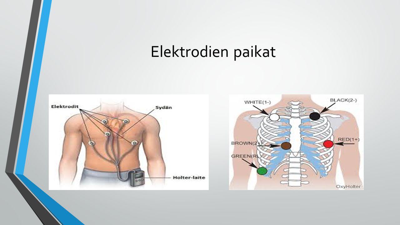 Elektrodien paikat