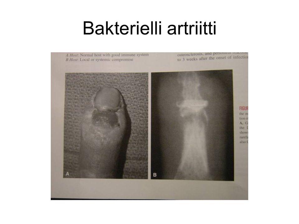Bakterielli artriitti