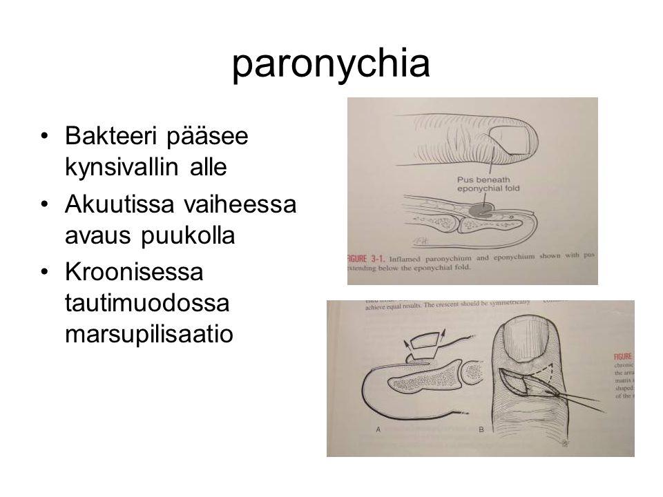 paronychia Bakteeri pääsee kynsivallin alle