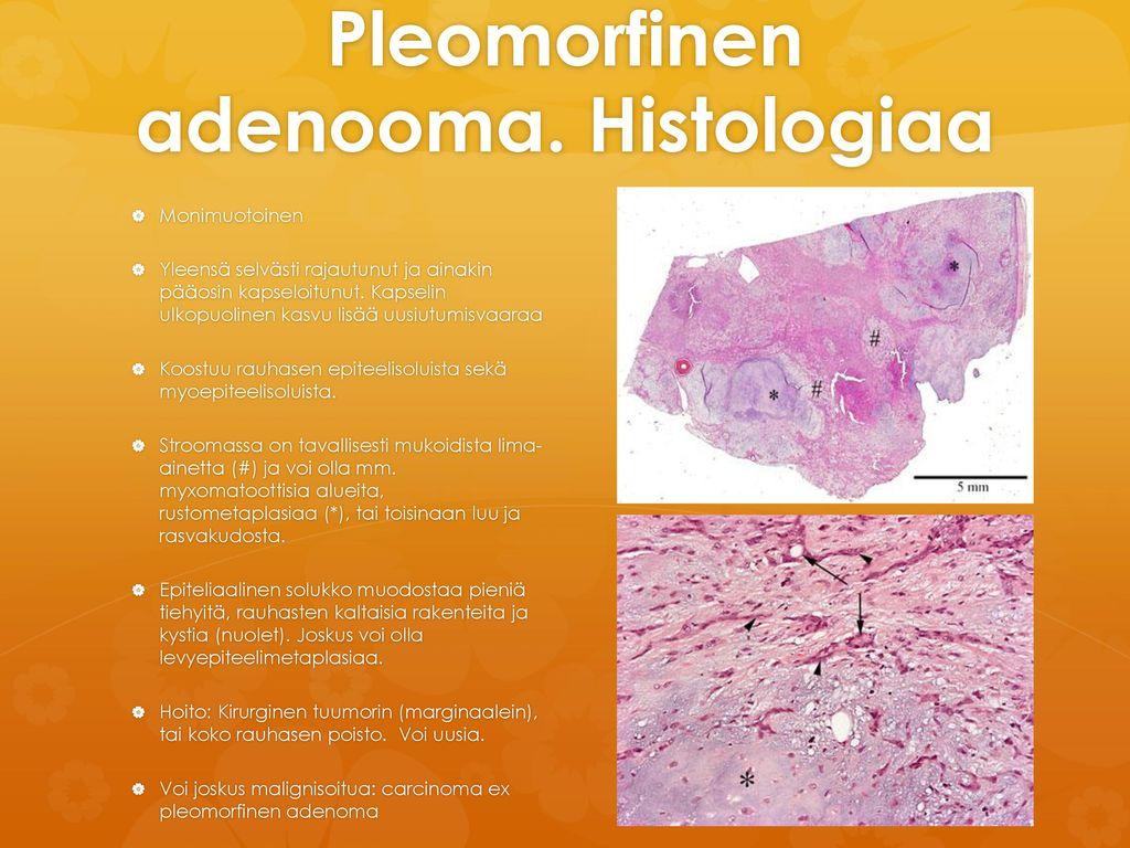 Pleomorfinen adenooma. Histologiaa