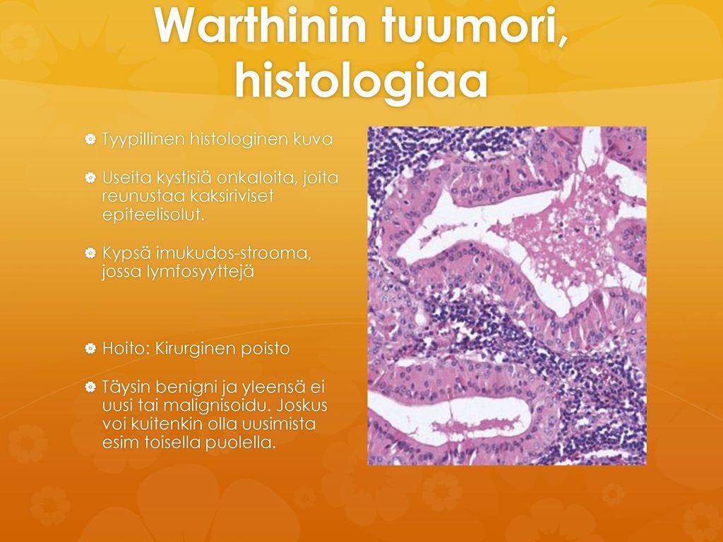 Warthinin tuumori, histologiaa