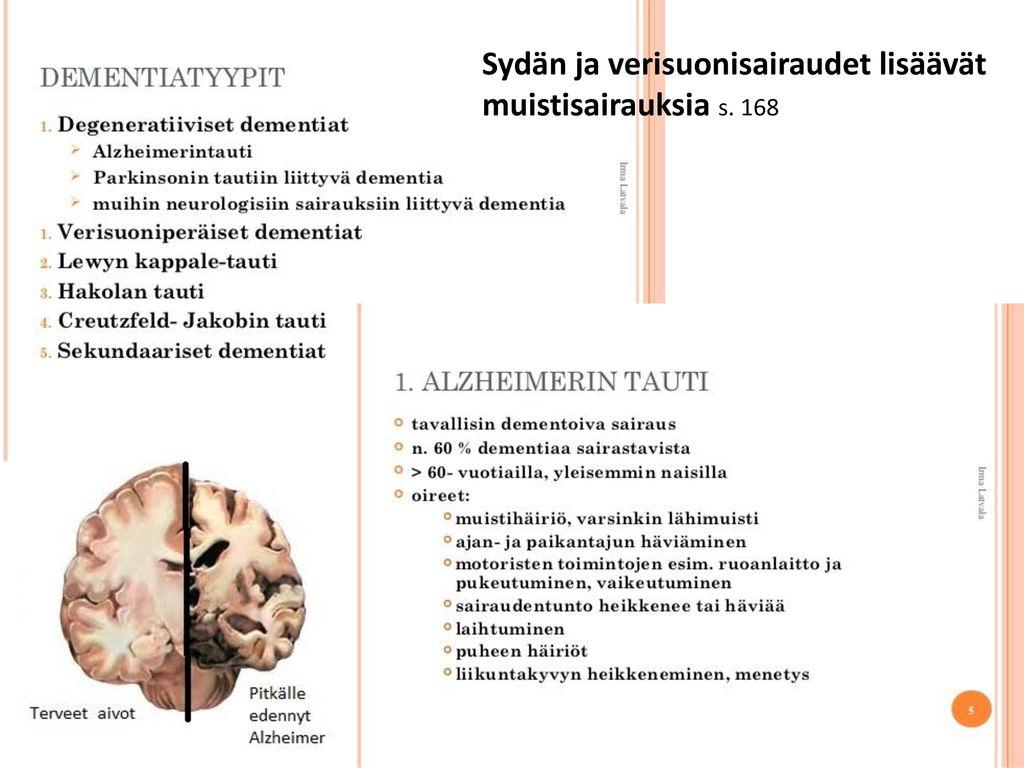 Sydän ja verisuonisairaudet lisäävät muistisairauksia s. 168