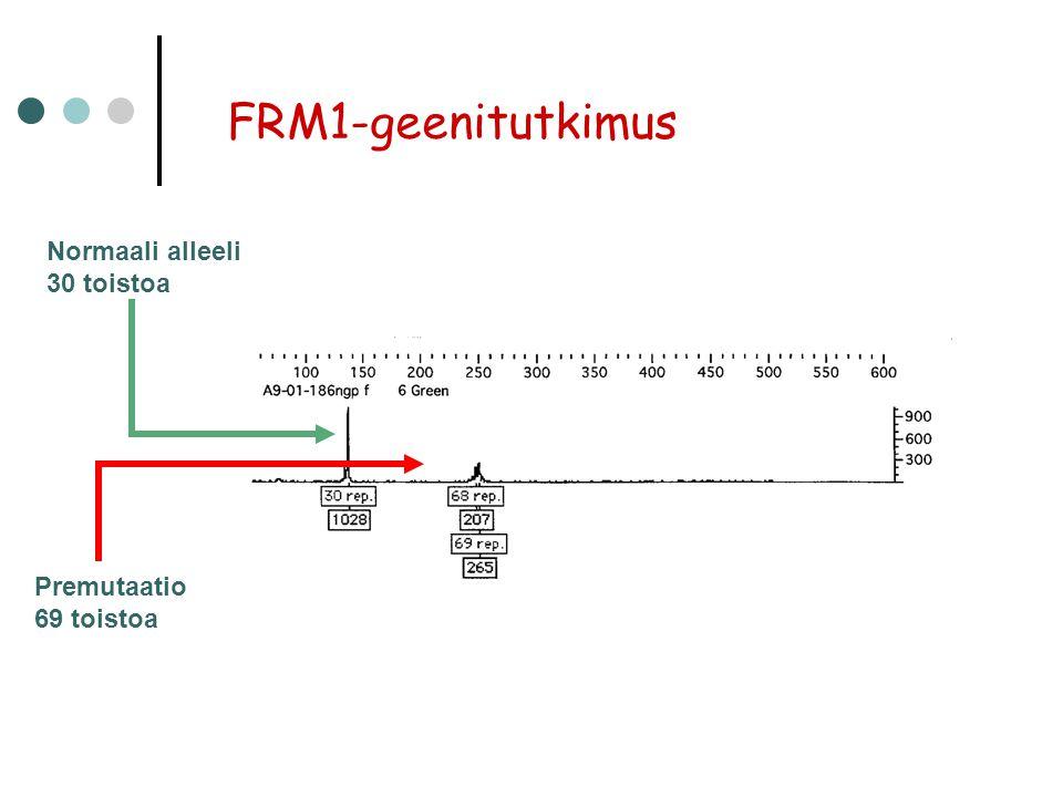 FRM1-geenitutkimus Normaali alleeli 30 toistoa Premutaatio 69 toistoa