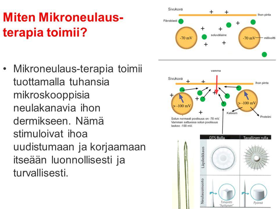 Miten Mikroneulaus-terapia toimii