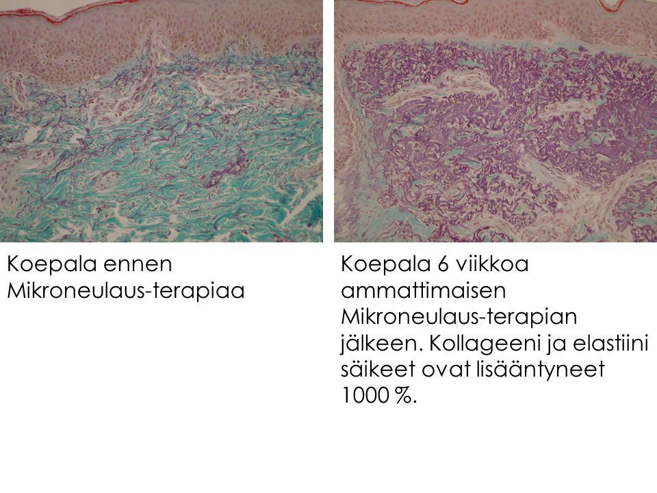 Koepala ennen Mikroneulaus-terapiaa