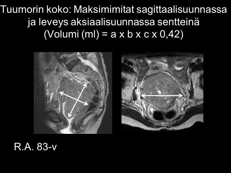 Tuumorin koko: Maksimimitat sagittaalisuunnassa ja leveys aksiaalisuunnassa sentteinä (Volumi (ml) = a x b x c x 0,42)