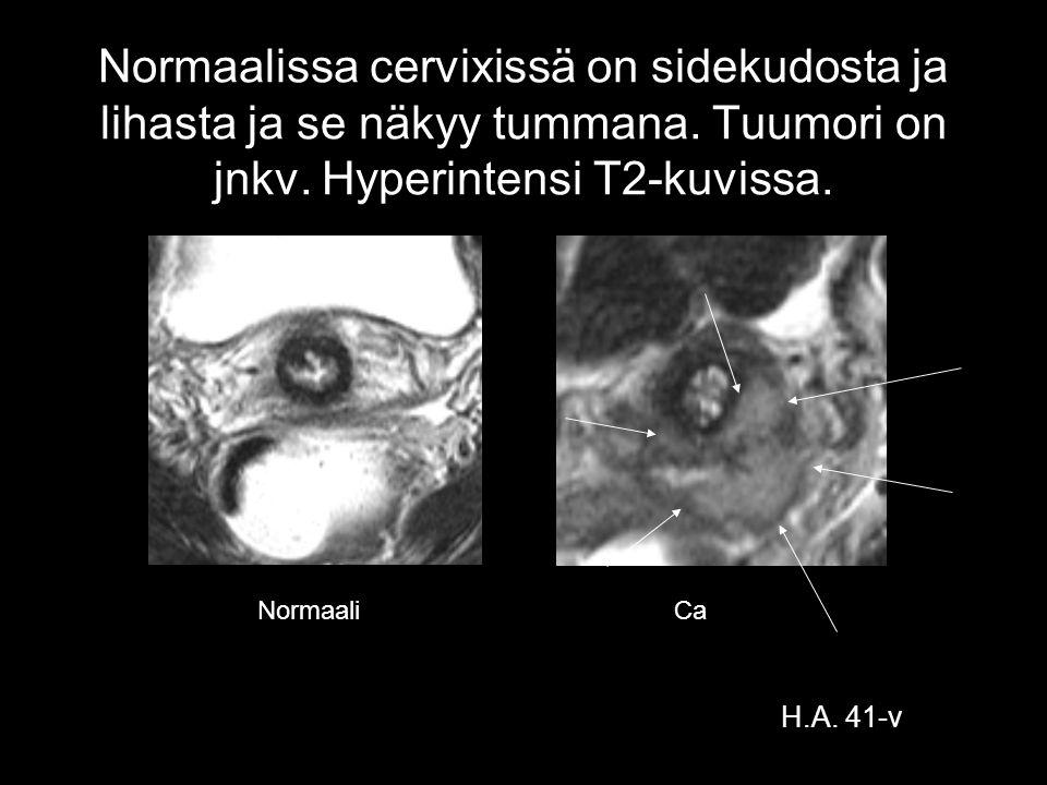 Normaalissa cervixissä on sidekudosta ja lihasta ja se näkyy tummana
