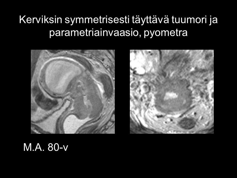 Kerviksin symmetrisesti täyttävä tuumori ja parametriainvaasio, pyometra