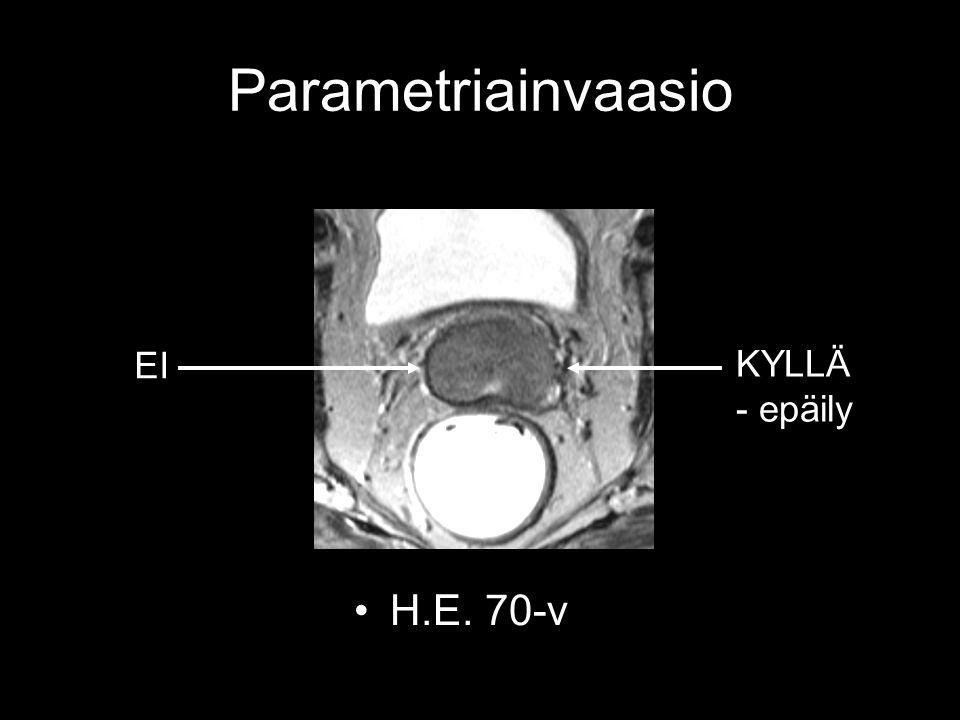 Parametriainvaasio EI KYLLÄ - epäily H.E. 70-v