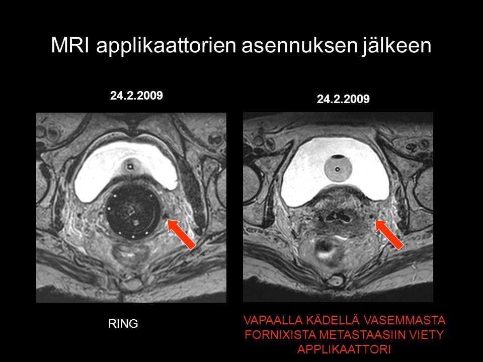 MRI applikaattorien asennuksen jälkeen