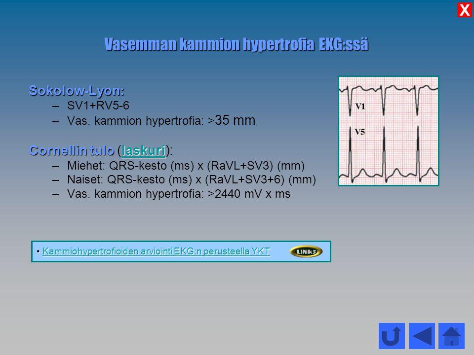 Vasemman kammion hypertrofia EKG:ssä