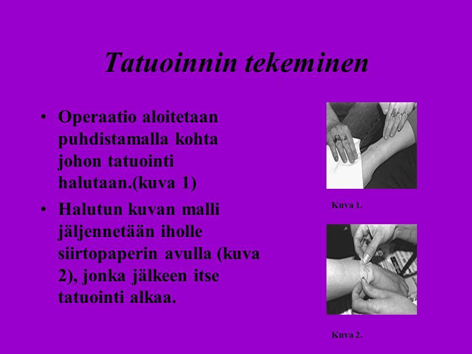 Tatuoinnin tekeminen Operaatio aloitetaan puhdistamalla kohta johon tatuointi halutaan.(kuva 1)