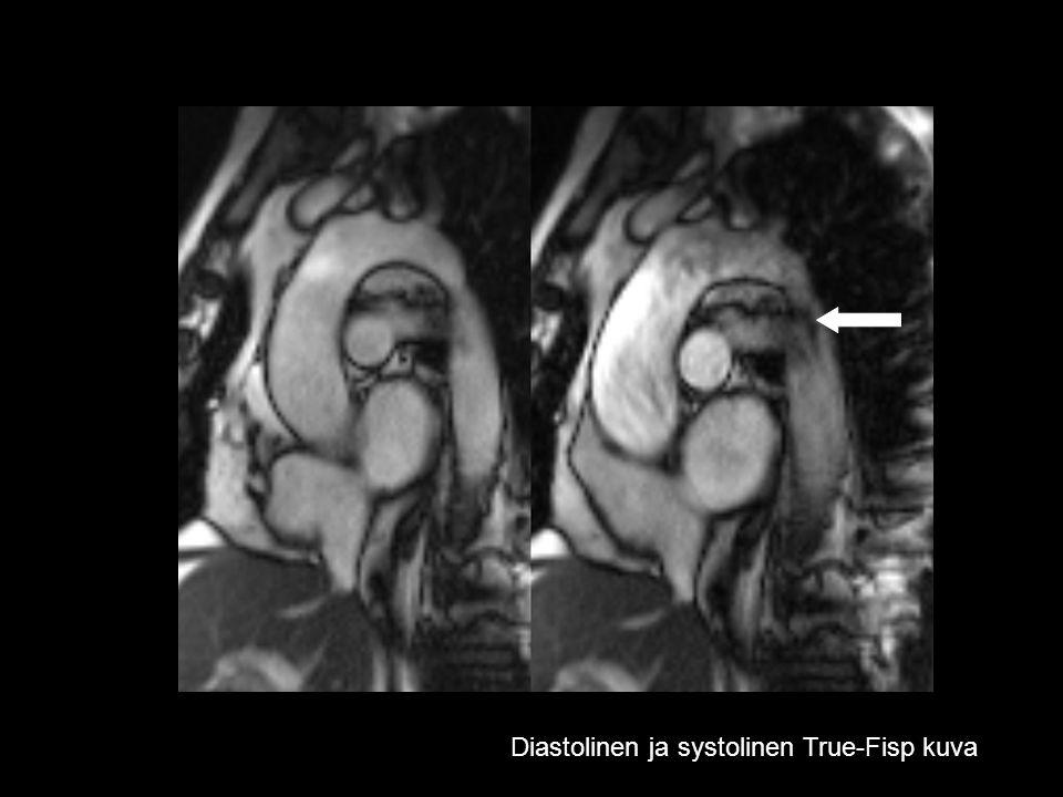 Diastolinen ja systolinen True-Fisp kuva