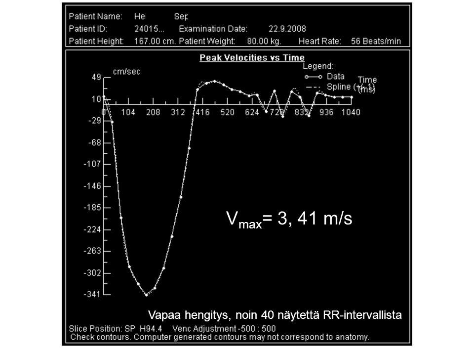 Vapaa hengitys, noin 40 näytettä RR-intervallista