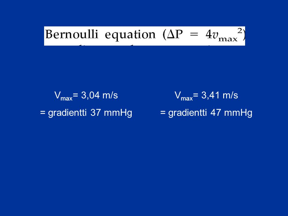 Vmax= 3,04 m/s = gradientti 37 mmHg Vmax= 3,41 m/s = gradientti 47 mmHg