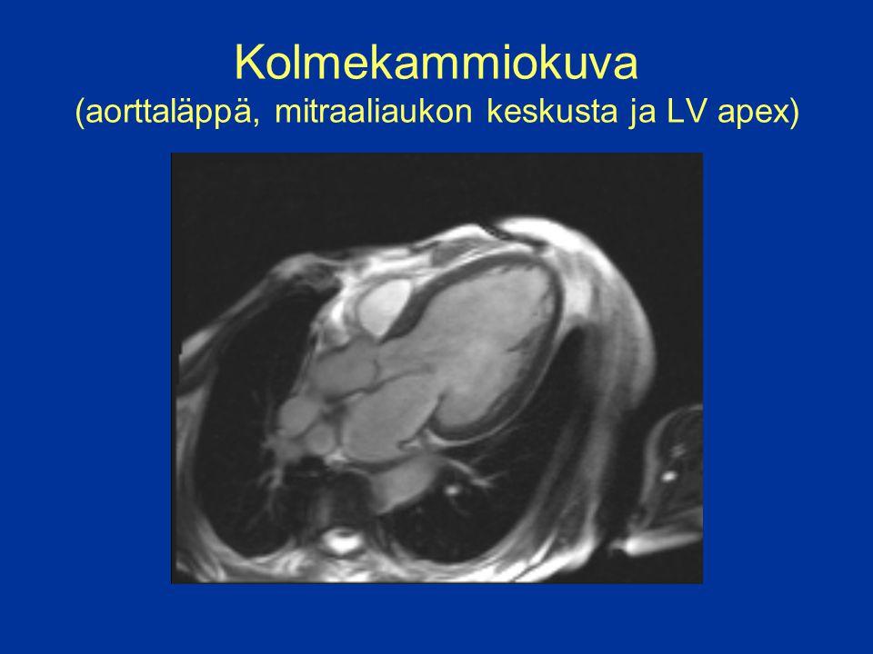 Kolmekammiokuva (aorttaläppä, mitraaliaukon keskusta ja LV apex)
