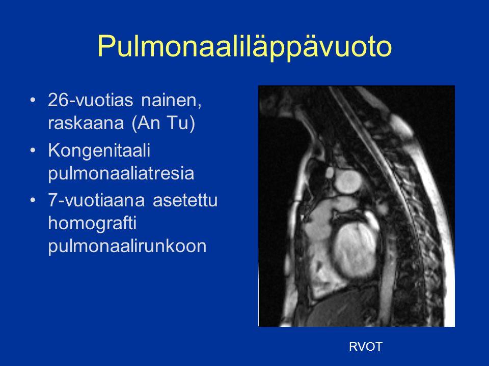 Pulmonaaliläppävuoto