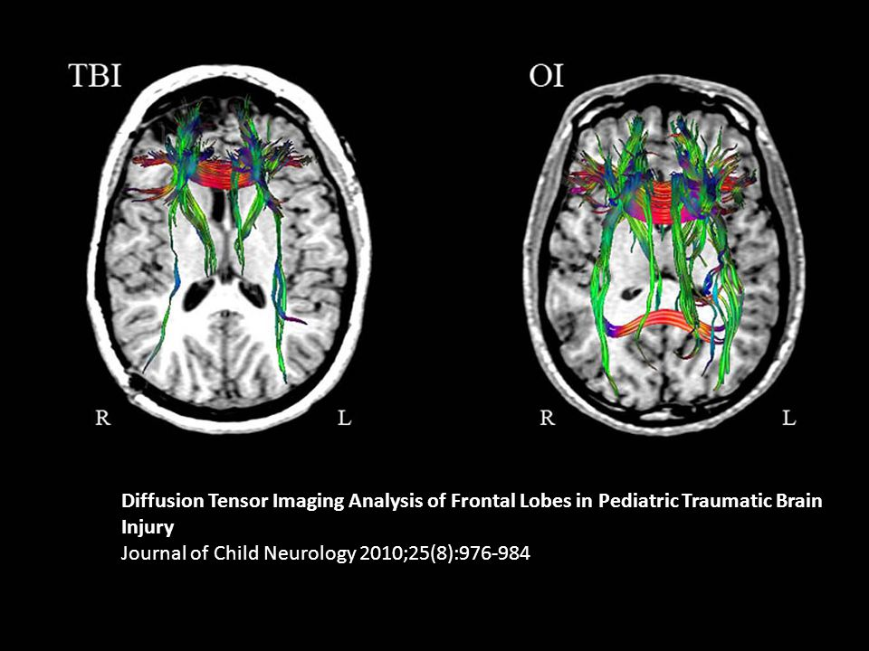Diffusion Tensor Imaging Analysis of Frontal Lobes in Pediatric Traumatic Brain Injury