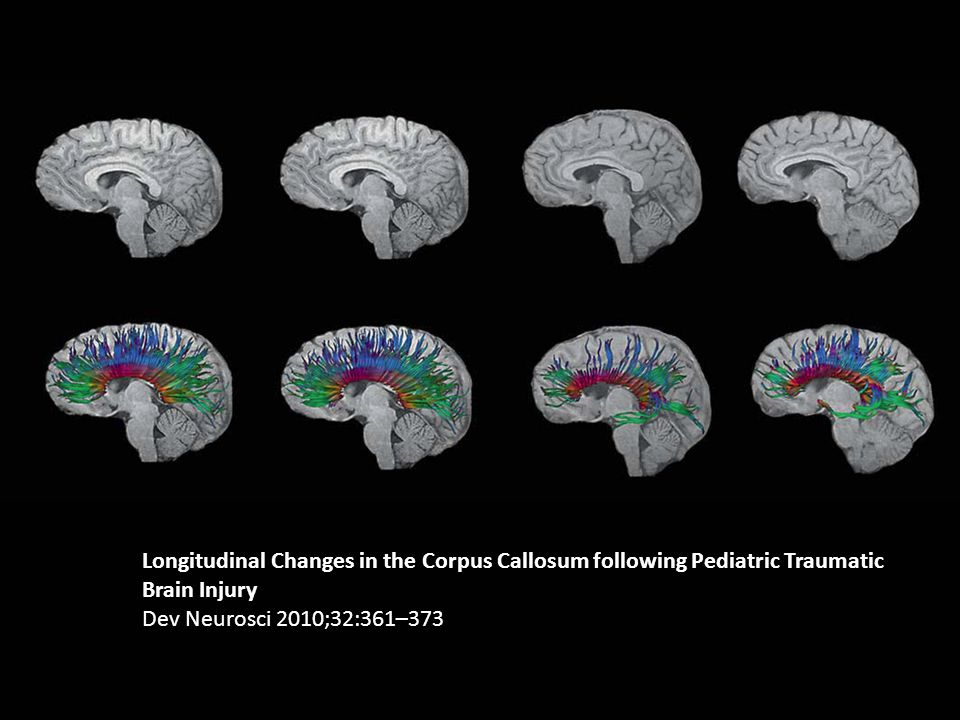 Longitudinal Changes in the Corpus Callosum following Pediatric Traumatic