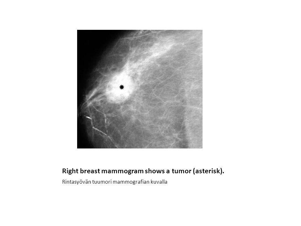 Right breast mammogram shows a tumor (asterisk).