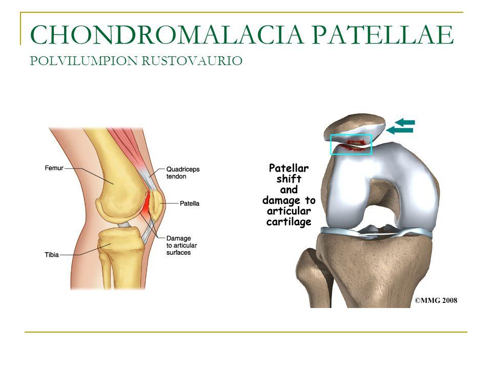 CHONDROMALACIA PATELLAE POLVILUMPION RUSTOVAURIO